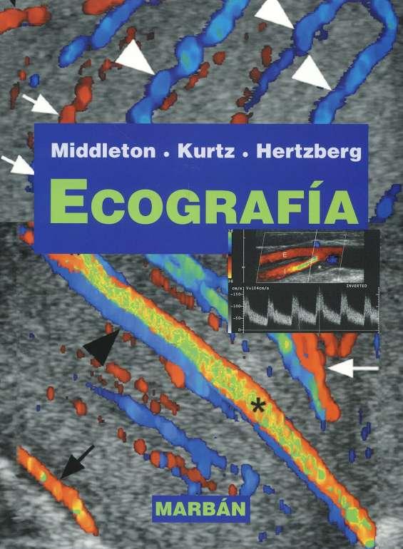 Ecografia de middleton